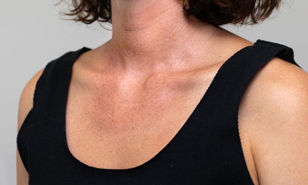 Blick auf das Dekolleté einer Frau. Deutlich sichtbare Hautalterung aufgrund von Licht