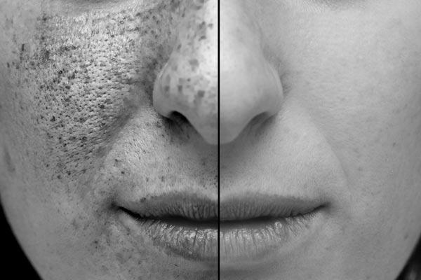 UV-Foto von Gesicht mit UV-Schäden im Vergleich zur normalen Haut